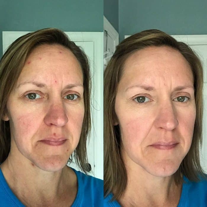 LimeLight Concealer Before and After